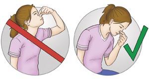 postura-hemorragia-nasal