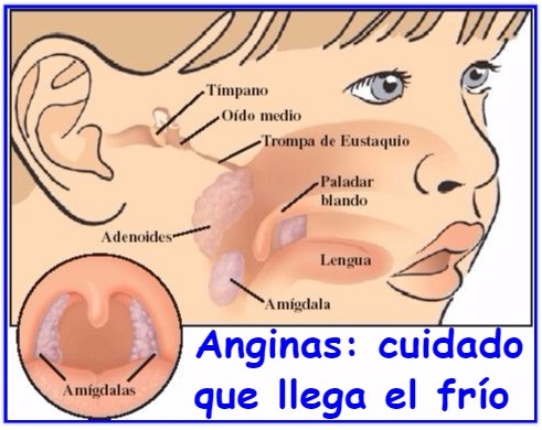 enlace-anginas