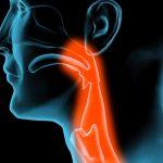 Cómo curar la faringitis crónica