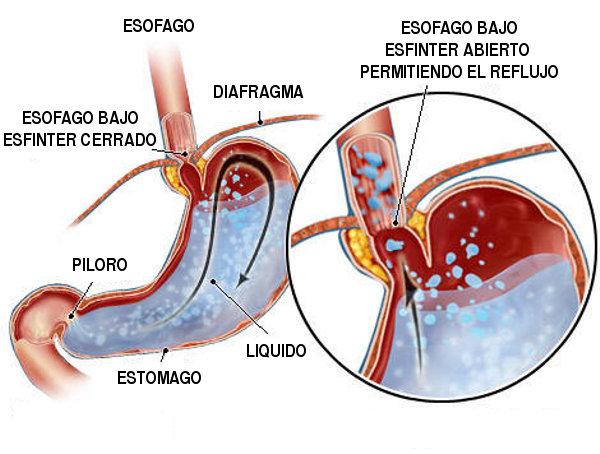 reflujo-gastrico