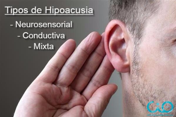 hipoacusia-cio-bilbao-tipos