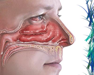 alergia-otoño-rinitis