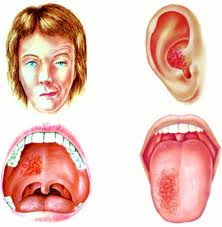 herpes zóster ótico