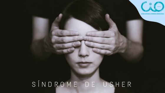 síndrome de usher