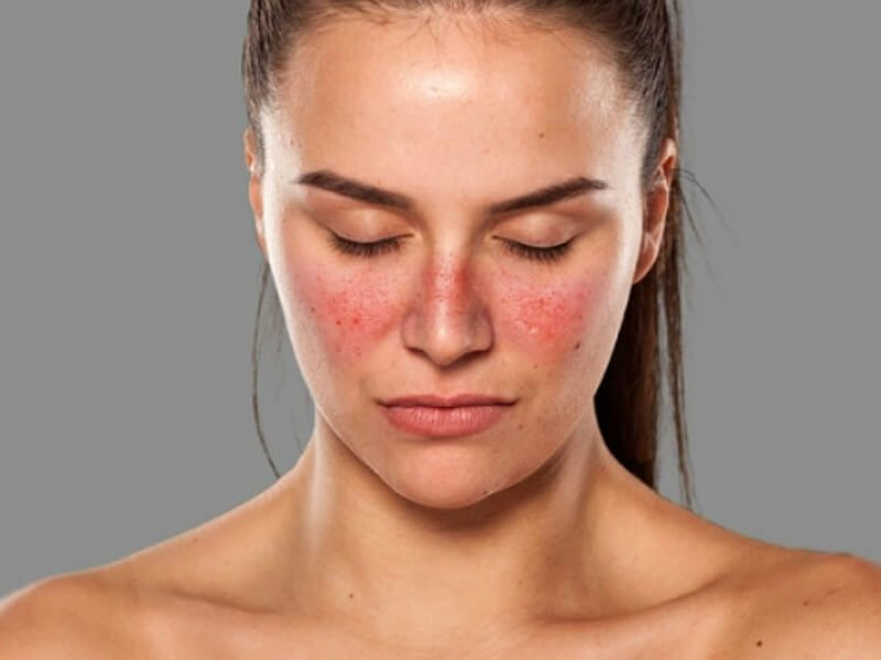 lupus eritematoso cutáneo