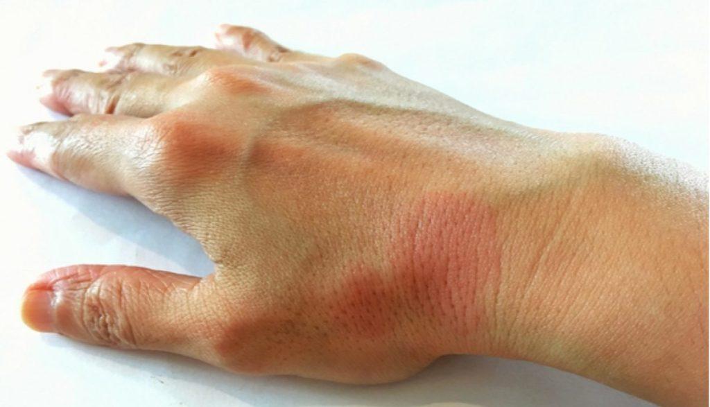 síntomas lupus eritematosos cutáneo