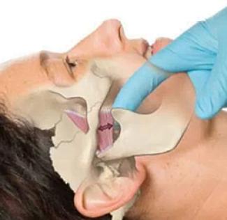 tratamiento fisioterapia ATM