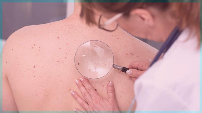 pruebas cáncer de piel