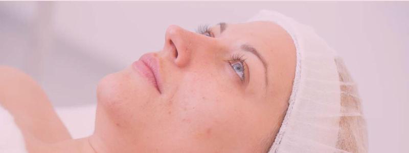 dermatólogo acné adultos