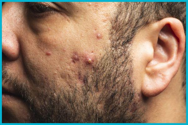 granos de acné en la cara