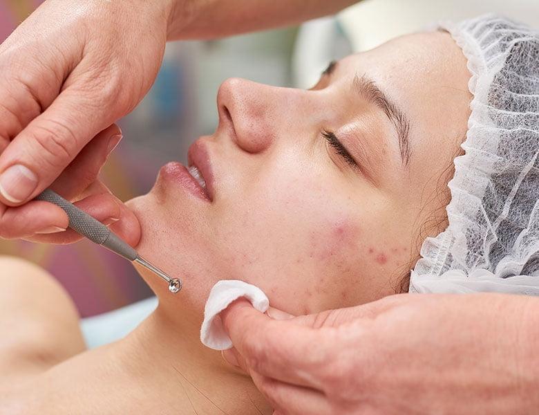 tratamiento acné adultos